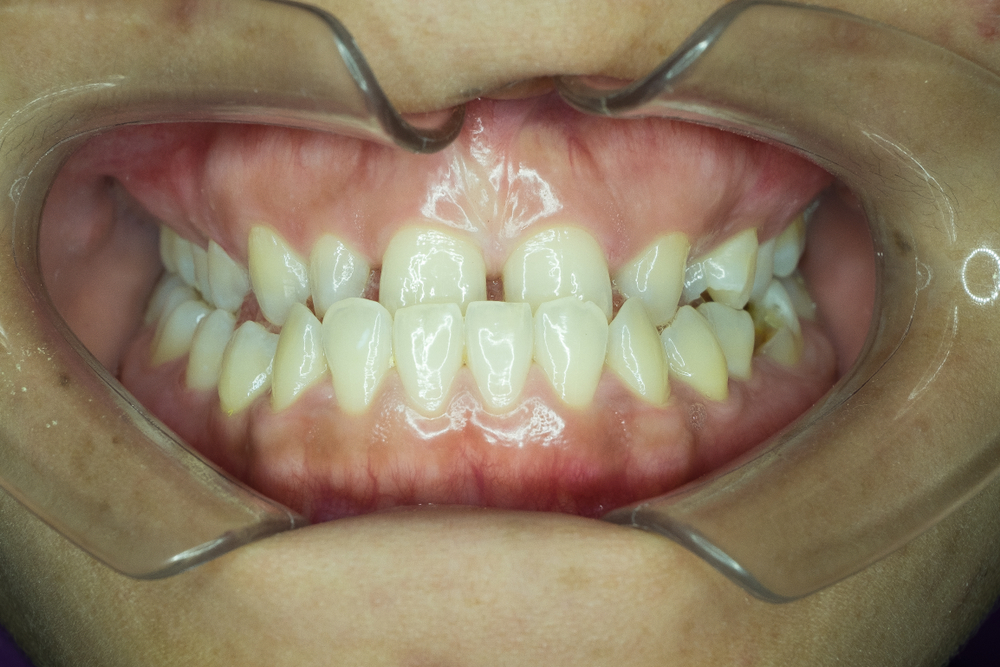Person with an underbite