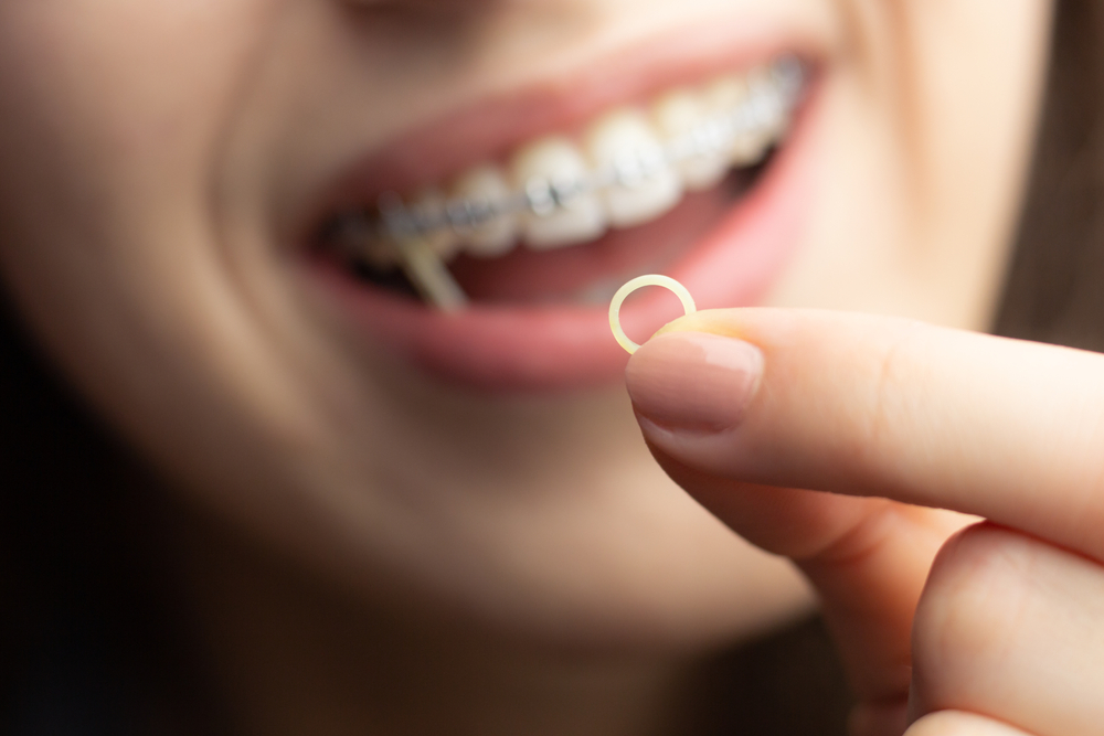 Young woman wearing braces holding a small rubber band